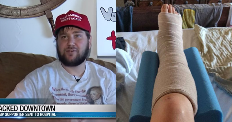 Image for MAGA Hat-Wearing Trump Supporter Attacked, Ankle Broken in 4 Places