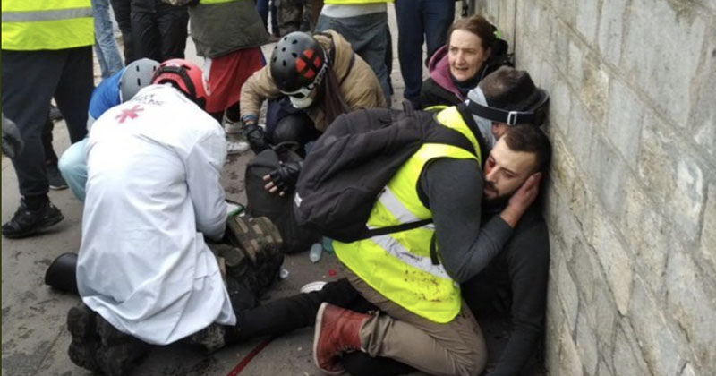 foto de Graphic Video: Protester Hand RIPPED OFF During Yellow