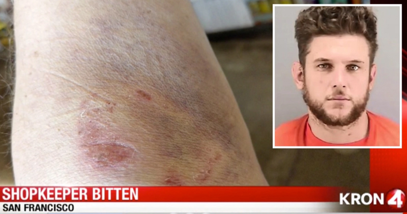 San Fran Store Owner Bitten Twice by Vagrants in Separate Attacks